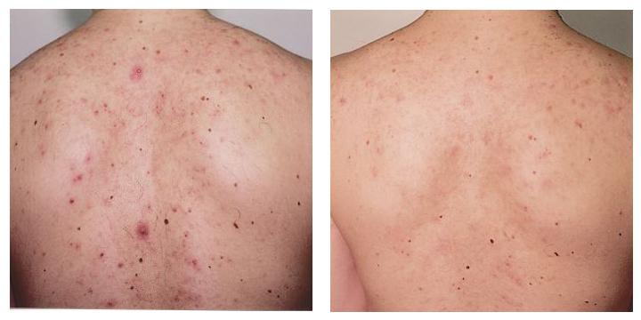 acne5