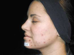 Acne Scarring - Before