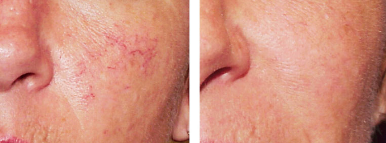 Spider Veins on Cheek. Before and After Laser Vein Removal Treatment