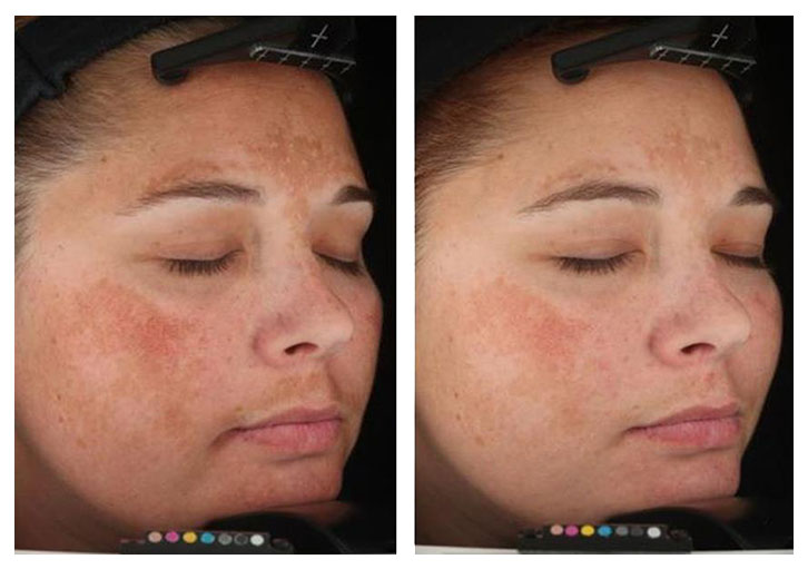 melasma_beforeafter_02