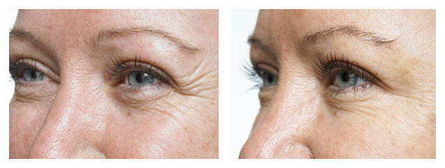 before and after fillers under eyes