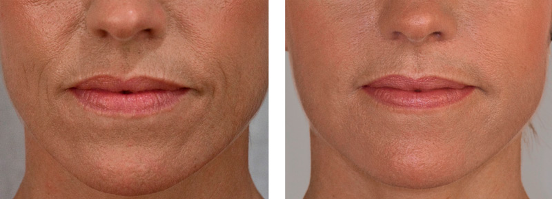 Dermal Fillers near me - Before and After