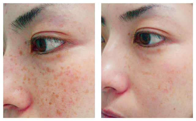 freckles_beforeafter_02