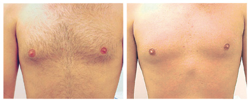 laserhairremoval_chest1_beforeafter