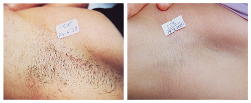 laserhairremoval_underarm1_beforeafter