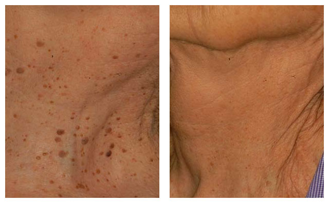 neckpigmentation_beforeafter_01