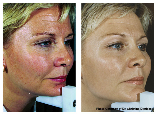 rosacea_beforeafter