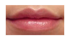 Perfect - Lip Enhancement
