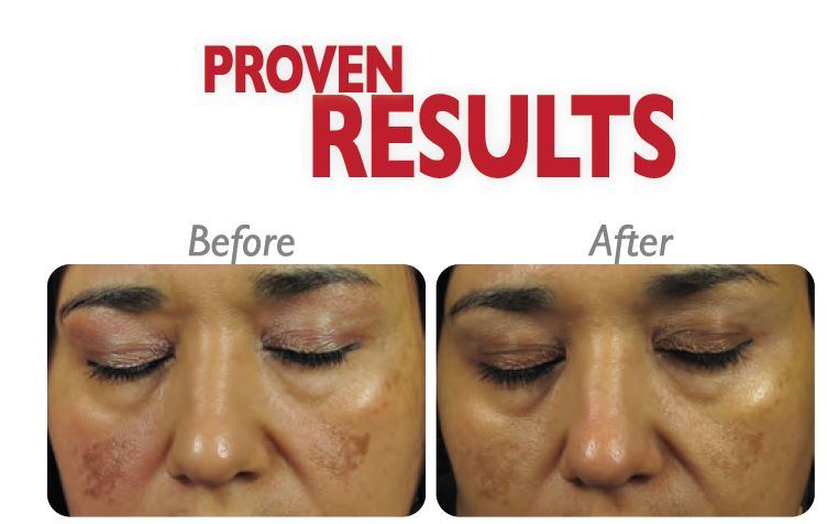 DermaFrac - Before and After