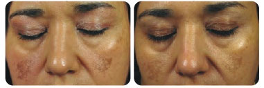 dermafrac-before-after-face02