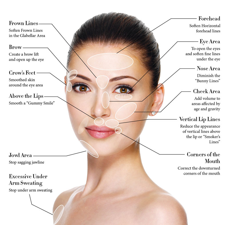 Anti-wrinkle Injections Melbourne - Dermacare