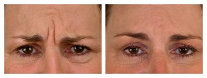 Before and After Anti-Wrinkle Injections