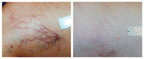 Unsightly Leg Spider Veins Before and After Laser Vein Removal Treatment