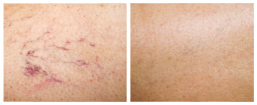 Red Spider Veins on Leg Before and After Laser Vein Removal Treatment