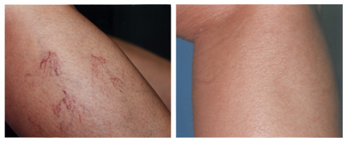 laservein_beforeafter03
