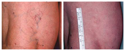 Leg Spider Veins Before and After Laser Vein Removal Treatment.