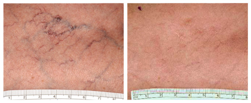 Spider Veins on Leg. Before and After Laser Vein Removal Treatment.