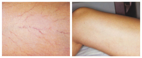 Spider Veins on the Leg Before and After Laser Vein Removal Treatment
