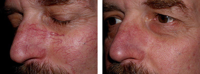 Spider Veins spreading across nose & cheeks. Before & After Laser Vein Removal Treatment