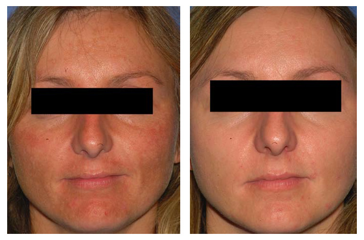 melasma_beforeafter_01