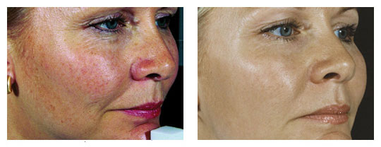 Laser Treatment For Rosacea In Melbourne At Dermacare Dermacare