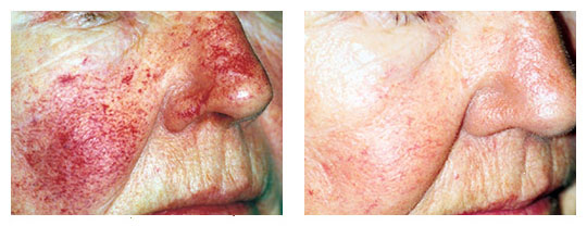 rosacea treatment melbourne