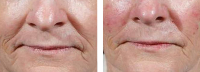 Dermal Fillers - Lower Face - Before & After