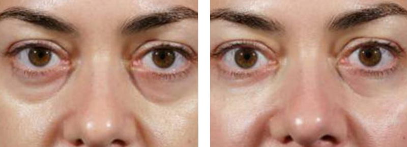 dermal fillers for under eyes in victoria