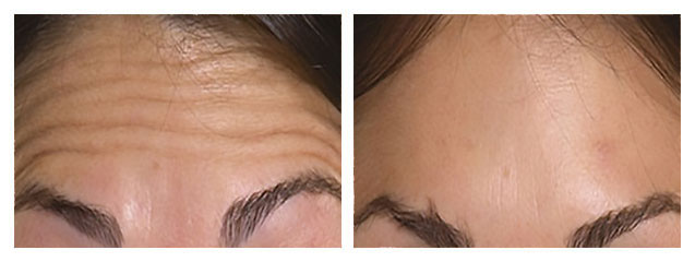 Anti-wrinkle injections and fillers before and after pictures