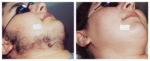 laserhairremoval_face2_beforeafter
