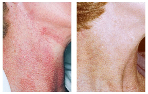 poikilderma_beforeafter_01