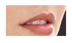 Rich Lips - Lip Enhancement