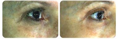 dermafrac-before-after-eyes