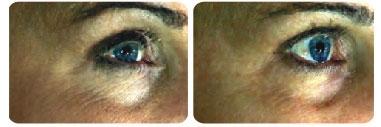 dermafrac-before-after-eyes02