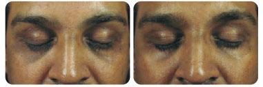 dermafrac-before-after-face