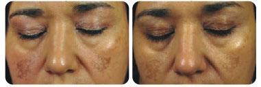 dermafrac-before-after-face02