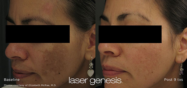 Discoloration - Laser Genesis Treatment