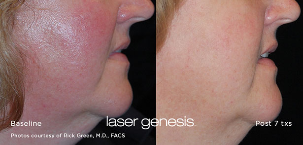 Redness and Pigmentation - Laser Genesis Treatment